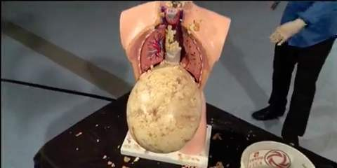 A stomach with 69 HDBs